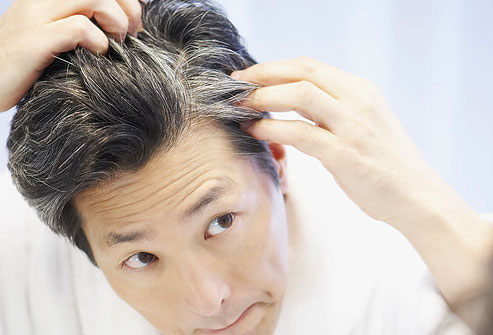 Gray Hair Treatment